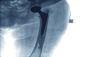 Stryker Corp announced a major settlement deal that will compensate thousands of patients injured by the company's metal-on-metal hip replacement implants.