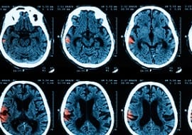 traumatic brain injury lawyers tulsa, brain injury awareness month, brain injury law firm broken arrow, brain injury lawyers oklahoma, head injury law firm tulsa